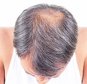 balding treatments Southampton