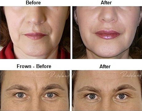 Dermal Fillers Southampton Restylane, Perlane, Juvederm Ultra and