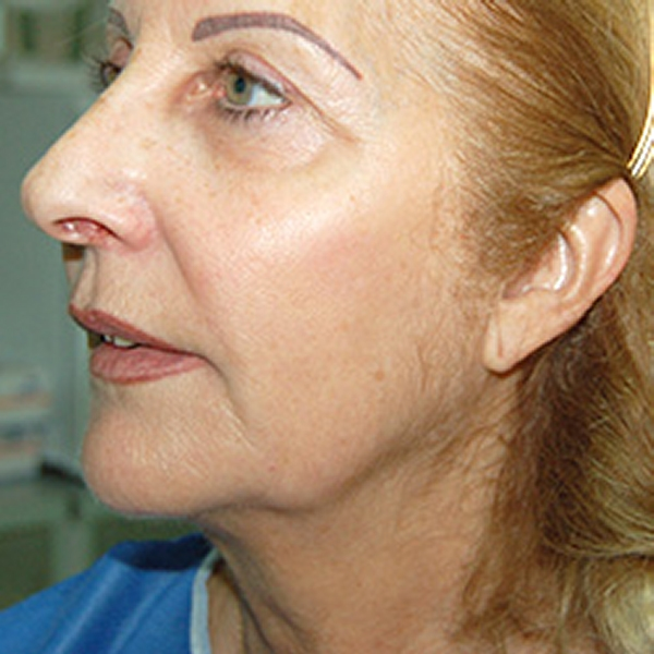 Silhouette Soft Thread Lift Southampton From The Xavier G Medical