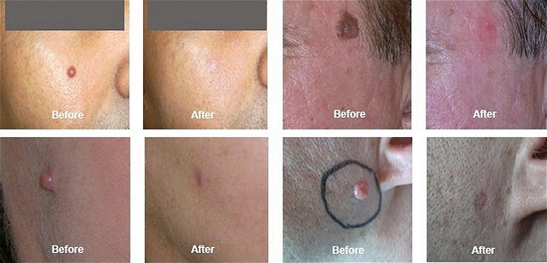Minor Cosmetic Skin Surgery Mole Removal Skin Tag Removal Birthmarks Removal Thread Vein Removal Southampton Hampshire
